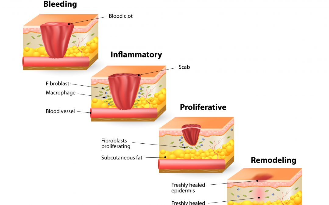 What Are the Stages of Wound Healing?  Blog Series: 3 of 4